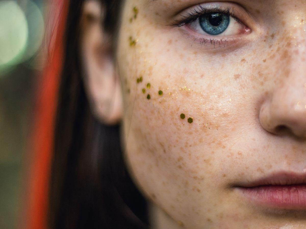 Haut augenbrauen trockene nase Trockene, raue