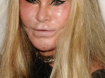 jocelyn-wildenstein-2032205.jpg