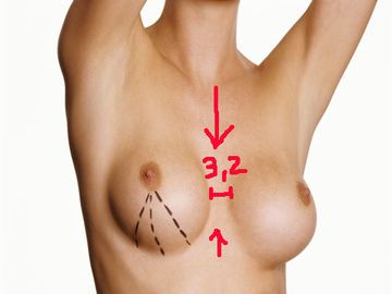 die-breast-gap-1936002.jpg