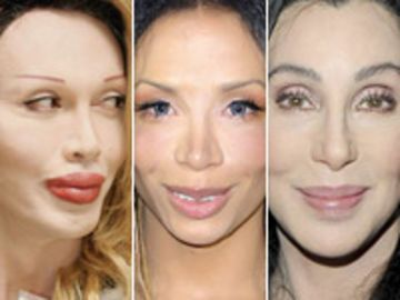 "Botox: ""A New Kind of Beauty"""